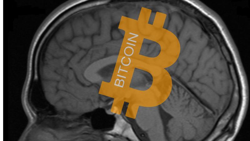 Alza Baja Precio Bitcoin Explicación Neurológica