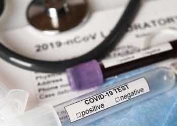 IBM-oracle-colaboran-iniciativa-coronavirus